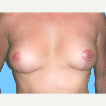 Breast Lift with Implants after 3748921