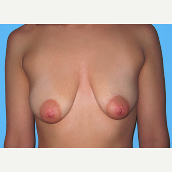Breast Lift with Implants before 3748921