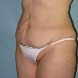 35-44 year old woman treated with Tummy Tuck before 3722156