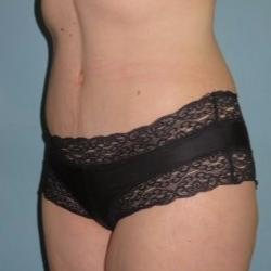35-44 year old woman treated with Tummy Tuck after 3722156