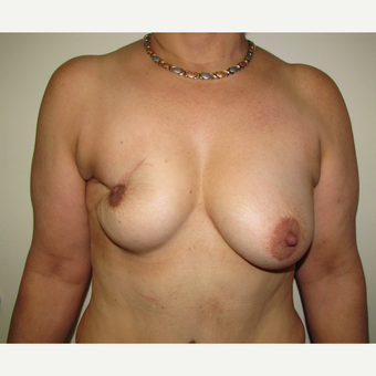 54 year old woman treated with Breast Reconstruction with Latissimus Flap before 3436004