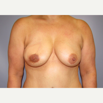 54 year old woman treated with Breast Reconstruction with Latissimus Flap after 3436004