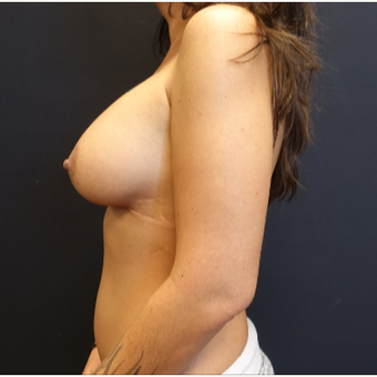 25-34 year old woman treated with Breast Augmentation after 3787616