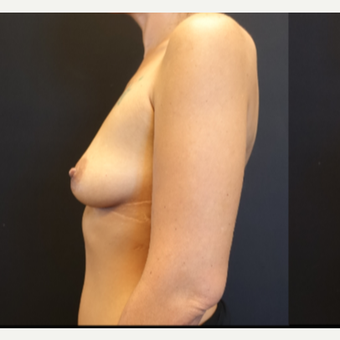25-34 year old woman treated with Breast Augmentation before 3787616