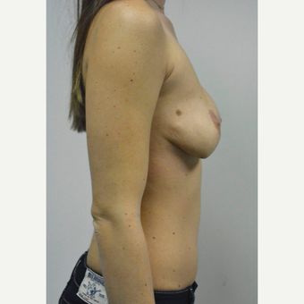 25-34 year old woman treated with Sientra Breast Implants before 3481808