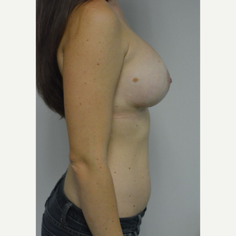 25-34 year old woman treated with Sientra Breast Implants after 3481808