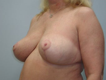 Breast Reduction after 243181