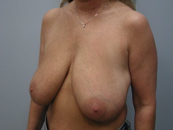 Breast Reduction before 243181