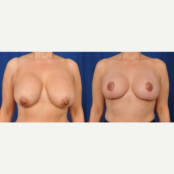 45-54 year old woman treated with Breast Lift with Implants before 3610185