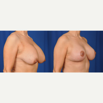 45-54 year old woman treated with Breast Lift with Implants after 3610185