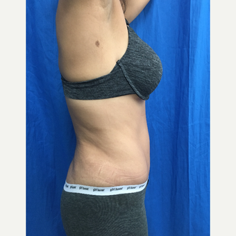 35-44 year old woman treated with Tummy Tuck after 3201334