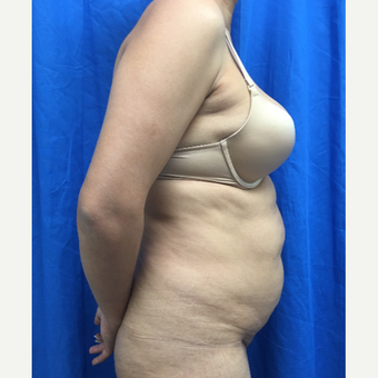 35-44 year old woman treated with Tummy Tuck before 3201334