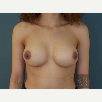 35-44 year old woman treated with Breast Augmentation after 3094416