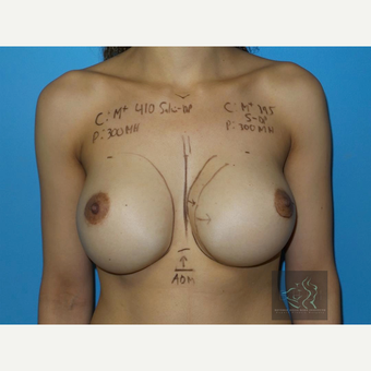 35-44 year old woman treated with Breast Augmentation before 3094416