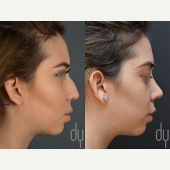 Rhinoplasty with rib cartilage before 3116174