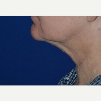 65-74 year old woman treated with Chin Liposuction after 3638737