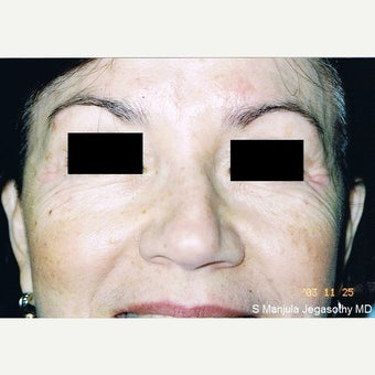 Botox Cosmetic® Used to Treat Eye Wrinkles after 2148391