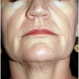 55-64 year old woman treated with ProFractional Laser followed with Thermage before 3447544