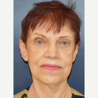 65-74 year old woman treated with MACS Facelift before 3449089