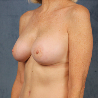 Natural breast augmentation with mommy makeover in patient over 50 after 3345283