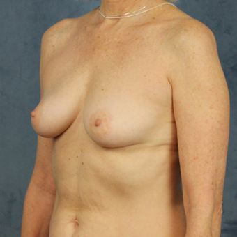 Natural breast augmentation with mommy makeover in patient over 50 before 3345283