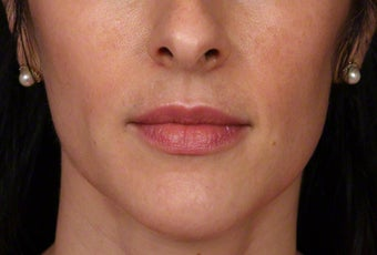 35-44 year old woman treated with Botox for masseter reduction after 3181469