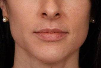 35-44 year old woman treated with Botox for masseter reduction before 3181469