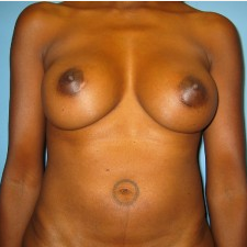 Breast Augmentation after 3665699