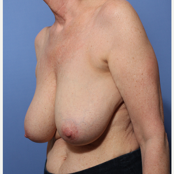 55-64 year old woman treated with Breast Reduction before 3506005