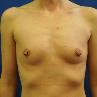 25-34 year old man treated with Breast Implants before 3685682