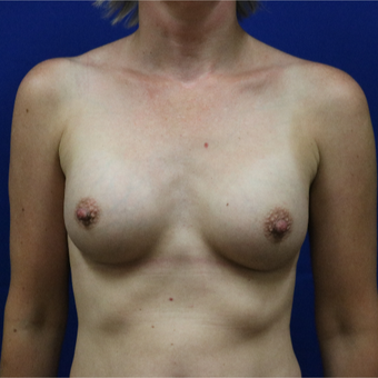 25-34 year old man treated with Breast Implants after 3685682