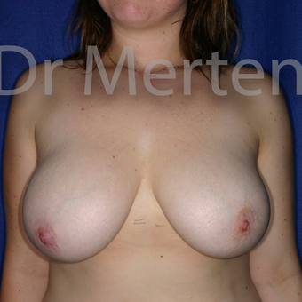 Breast Reduction before 3681295