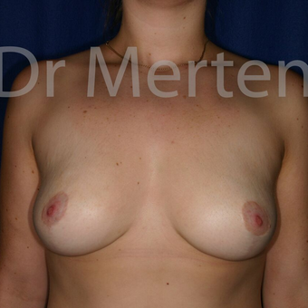 Breast Reduction after 3681295