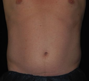 40 y/o male - CoolSculpting before 1322767