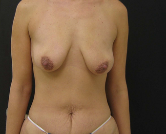 Breast Augmentation Mastopexy and Tummy Tuck before 523239