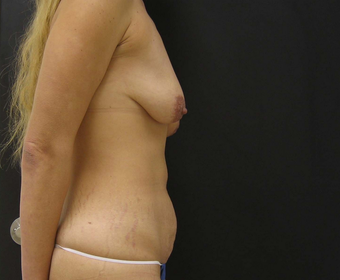 Breast Augmentation Mastopexy and Tummy Tuck 523239