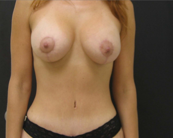 Breast Augmentation Mastopexy and Tummy Tuck after 523239