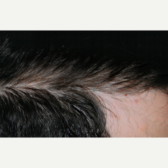 25-34 year old man treated with PRP for Hair Loss after 3803928