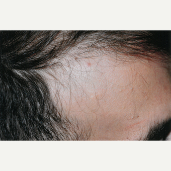 25-34 year old man treated with PRP for Hair Loss before 3803928