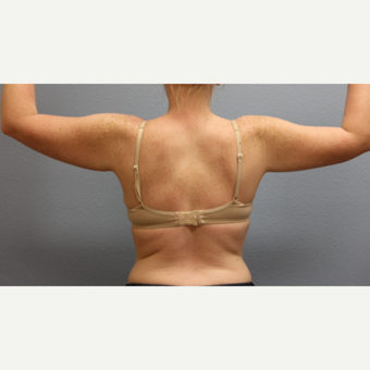 25-34 year old woman treated with Liposuction after 3685904