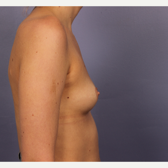 18-24 year old woman treated with Breast Augmentation before 3494791