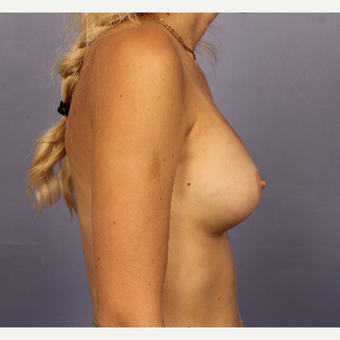 18-24 year old woman treated with Breast Augmentation after 3494791