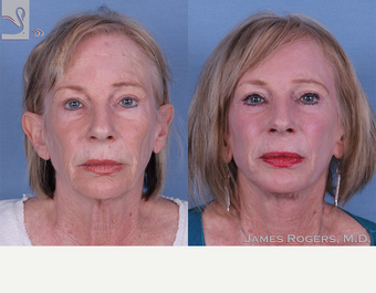 55-64 year old woman treated with Facelift before 3844167