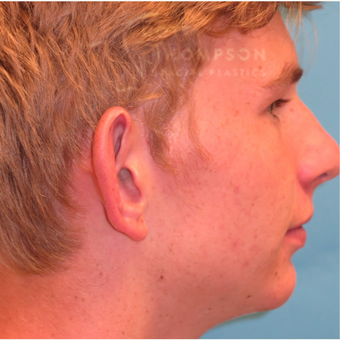 17 or under year old man treated with Ear Surgery before 3625017