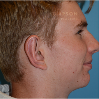 17 or under year old man treated with Ear Surgery after 3625017