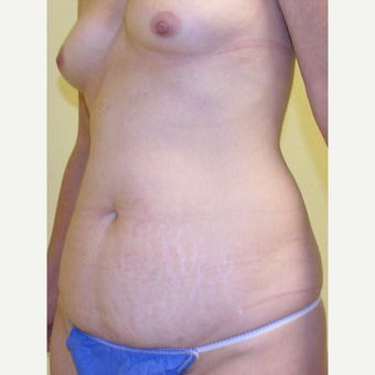 35-44 year old woman treated with Mommy Makeover before 3434716