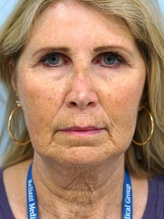 55-64 year old woman treated with Fractional Laser before 2558350
