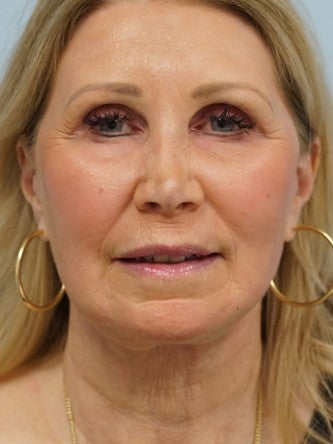 55-64 year old woman treated with Fractional Laser after 2558350