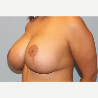 25-34 year old woman treated with Breast Lift with Implants after 3537318