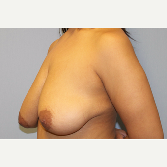 25-34 year old woman treated with Breast Lift with Implants before 3537318